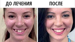 Установка брекетов в Москве - отзывы