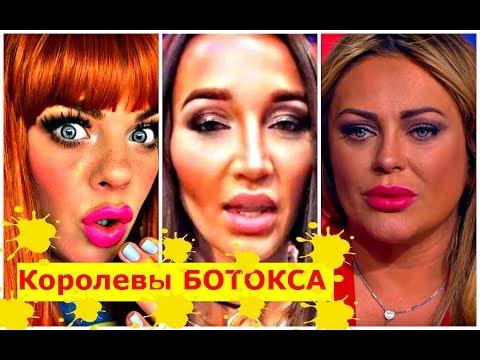 Звёзды после НЕУДАЧНЫХ УКОЛОВ красоты ! - Видео онлайн