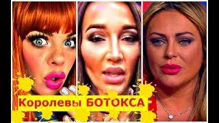 Download Звёзды после НЕУДАЧНЫХ УКОЛОВ красоты ! Mp3 and Videos