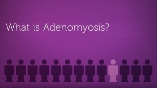 What is Adenomyosis? (Enlarged Uterus)