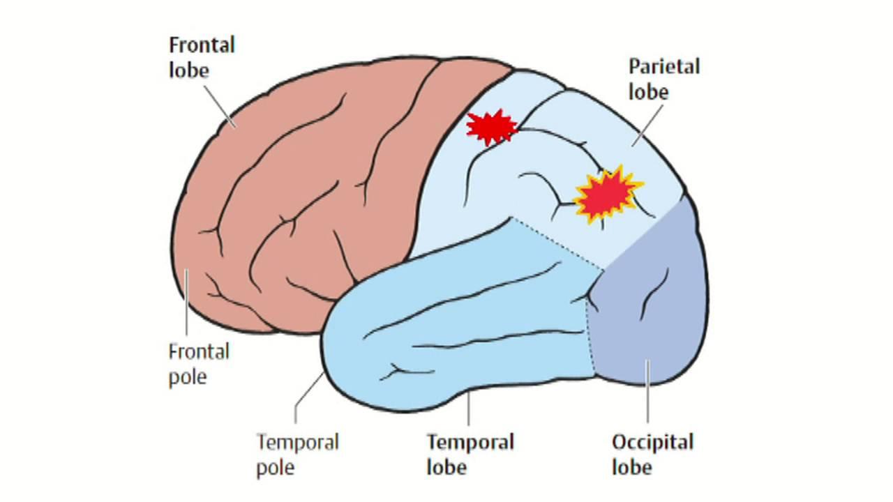 доброкачественная эпилепсия теменная височная