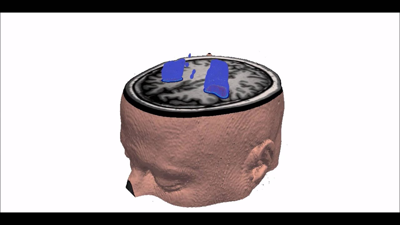 DeepMedic – BioMedIA