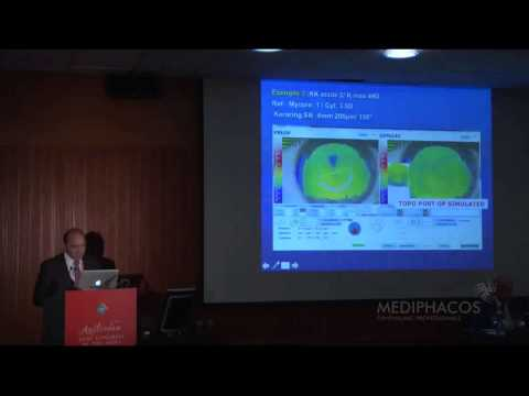 Total Keratoconus User Meeting at 2013 ESCRS in Amsterdam