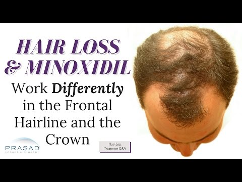 Why the Frontal Hairline Recedes Faster than the Crown, Which Can Limit Minoxdil's Effectiveness