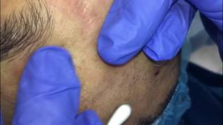 Managing Ethnic Skin (extractions part 5) thumbnail