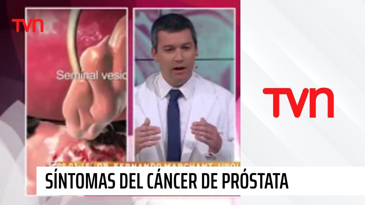 incones en la prostata