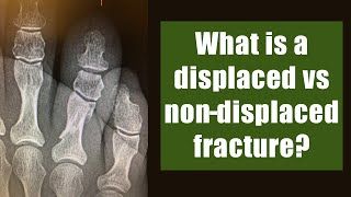 What is a displaced vs non-displaced fracture