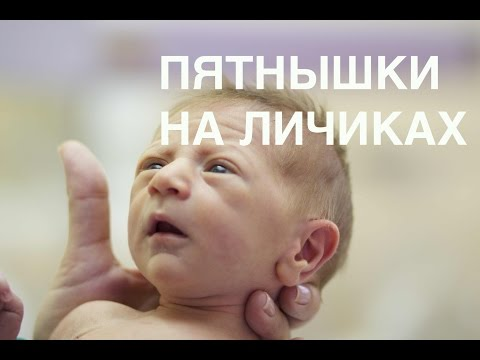 Пятнышки на лицах новорожденных II ОВП