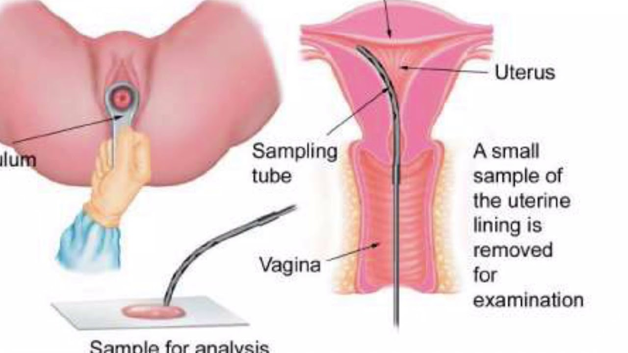 My Young Vaginal Walls During Menstruation -Day 1 - Youtube