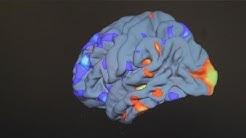 Neue Erkenntnisse über die Ursachen von Autismus - science
