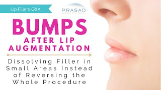 Bumps after Lip Augmentation - Dissolving Filler in a Small, Focused Area