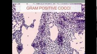 Bacteriology- Staphylococcus (Gram Positive Cocci)