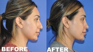 MY PLASTIC SURGERY EXPERIENCE | NOSE & CHIN JOB