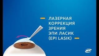 Эпи ЛАСИК (Epi LASIK) - метод лазерной коррекции зрения(Видео операции лазерной коррекции зрения методом Эпи ЛАСИК (Epi LASIK). Подробнее здесь: http://mgkl.ru/uslugi/epi-lasik