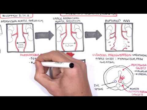 Abdominal Aortic Aneurysm - Summary