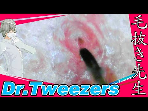 355 [200x Zoom] 穴から引き抜く Dr. tweezers 毛抜き先生の角栓や毛根