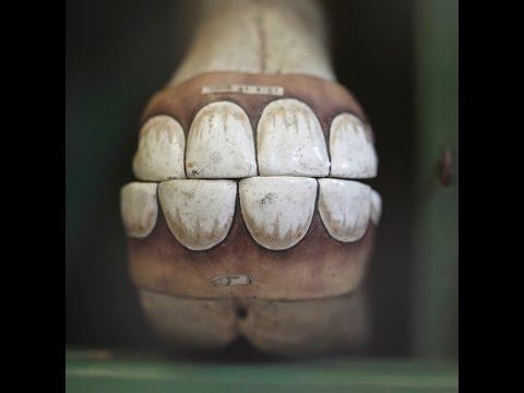 the-horses'-teeth