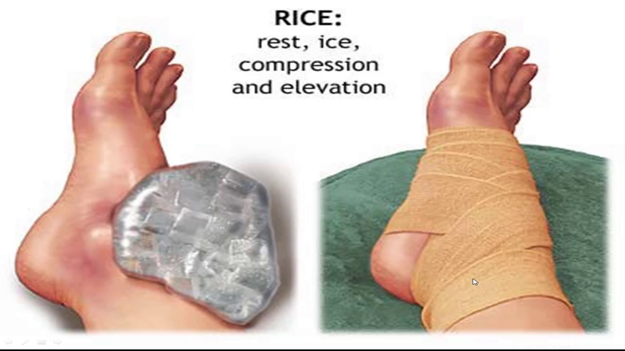 Image result for How to Treat a Sprained Ankle