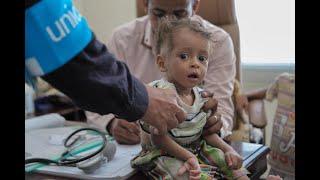 أخبار الصحة - الصليب الأحمر: حالات الكوليرا في اليمن تجاوزت 300 ألف