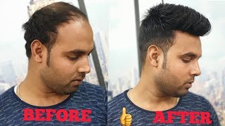 a non surgical hair clipping system [wig] for man in delhi & agra by master RIZY