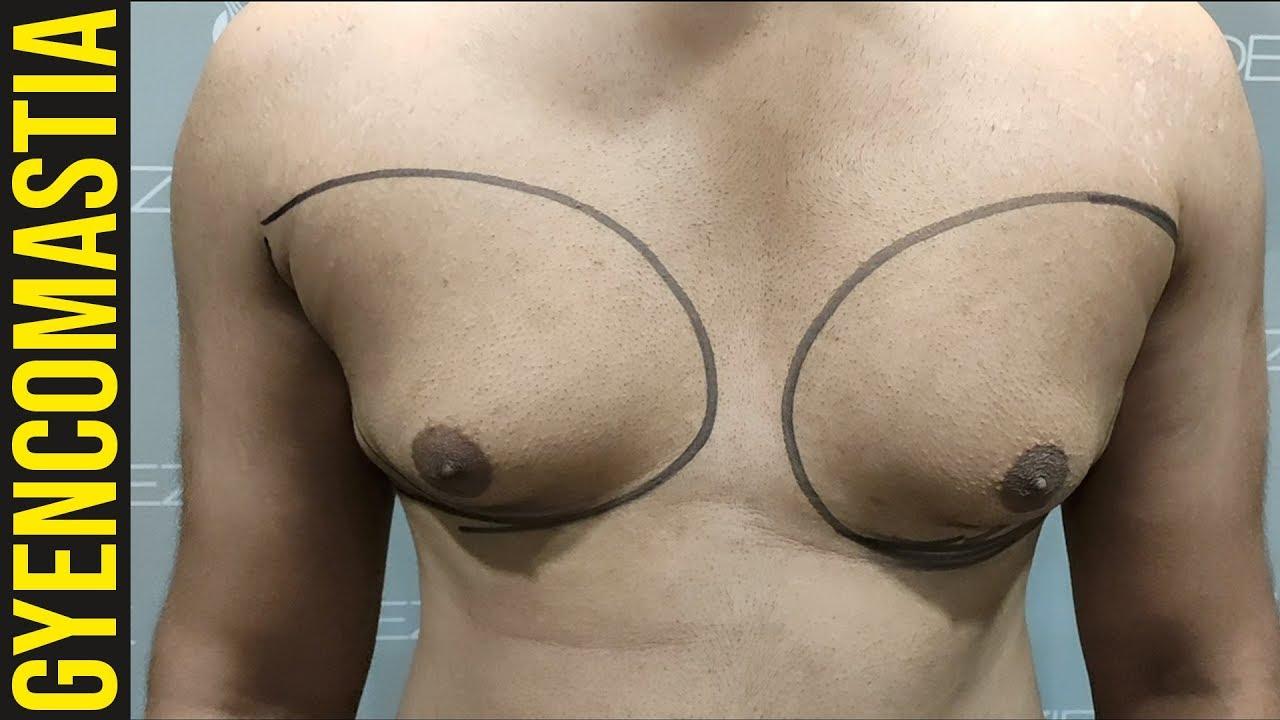 Getting rid of man tits, petite boobed