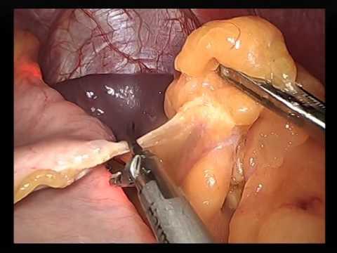 """GastriSail"" عملية تكميم المعدة بالمنظار الجراحي باستخدام جهاز"