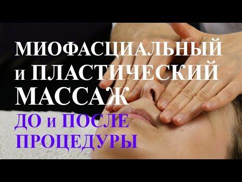 Миофасциальный и пластический массаж. Лицо до и после процедуры. Омоложение лица