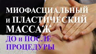 Миофасциальный и пластический массаж. Лицо до и после процедуры