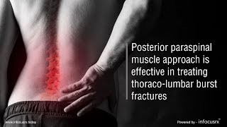 Posterior paraspinal muscle approach is effective in treating thoraco-lumbar burst fractures