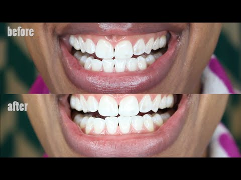 Can Activated Charcoal Really Whiten Teeth Naturally Before And