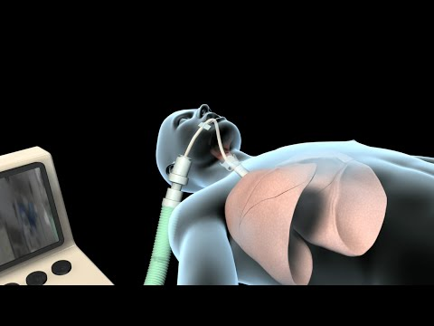 Intubation & Mechanical Ventilation