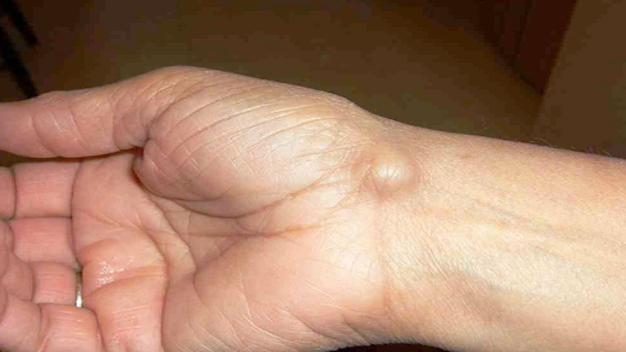 Cyst photo ganglion thumb