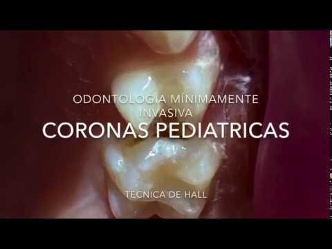 Odontologia del bebé. Coronas pediatricas.