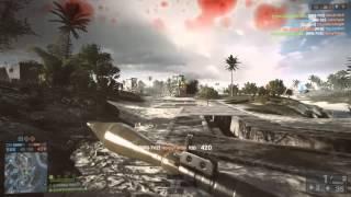 Battlefield4 XboxOne NiCKiSOKiNKy The Rocket Queen Ep 1 2
