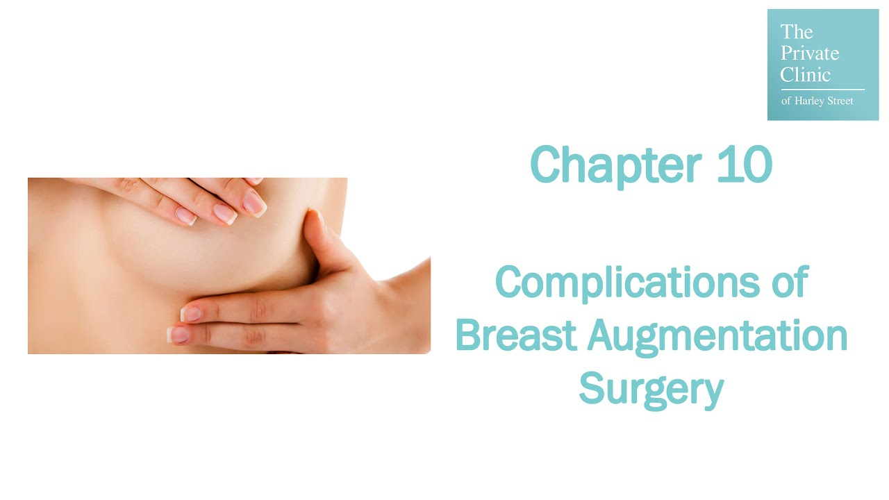 an introduction to the analysis of breast implants An experimental analysis of shell failure in breast implants introduction breast implant rupture has been an important topic for the plastic surgery community.