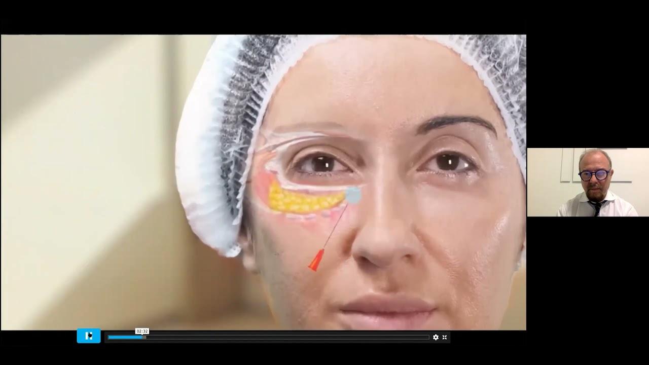 RADLA TV  Dermatología Estética