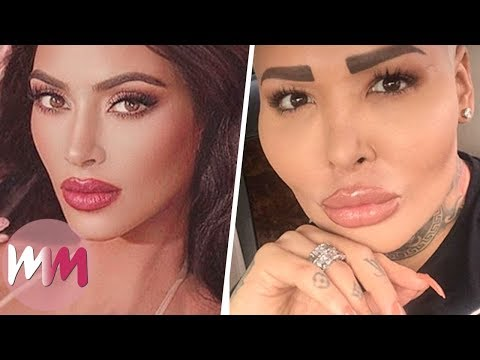 Top 10 People Who Abused Plastic Surgery to Look Like Their Idol