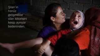 Sünnet Edilen Kız Çocukları...Retro Ajans Ankara Engin Yılmaz