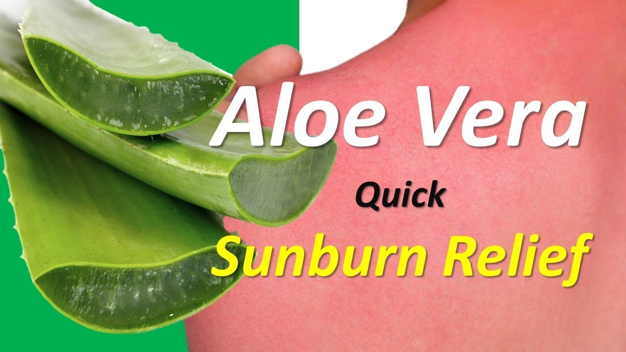 Image result for sunburn treatment pictures