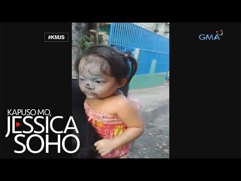 Kapuso Mo, Jessica Soho: Bata, kinagat ng aso ang ilong!