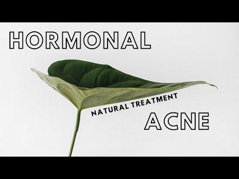 a naturopath explains how to treat hormonal acne » NATURALLY | Chloe Wilkinson Naturopath