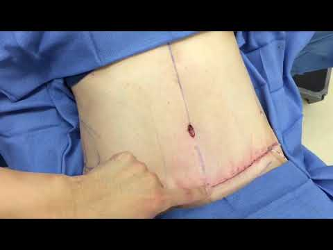 tummy-tuck-/-abdominoplasty---before-and-after---dr.-anthony-youn
