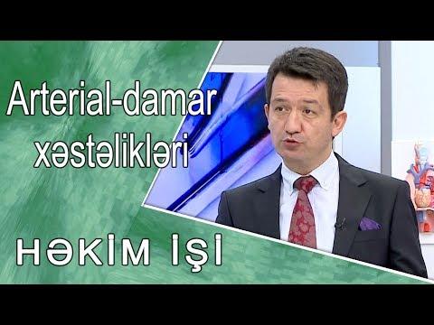 Arterial-damar xəstəlikləri  -  HƏKİM  İŞİ  /30.10.2017/