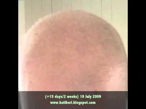 Hatiheri S Hair Regrowth Timeline After Chemo Youtube