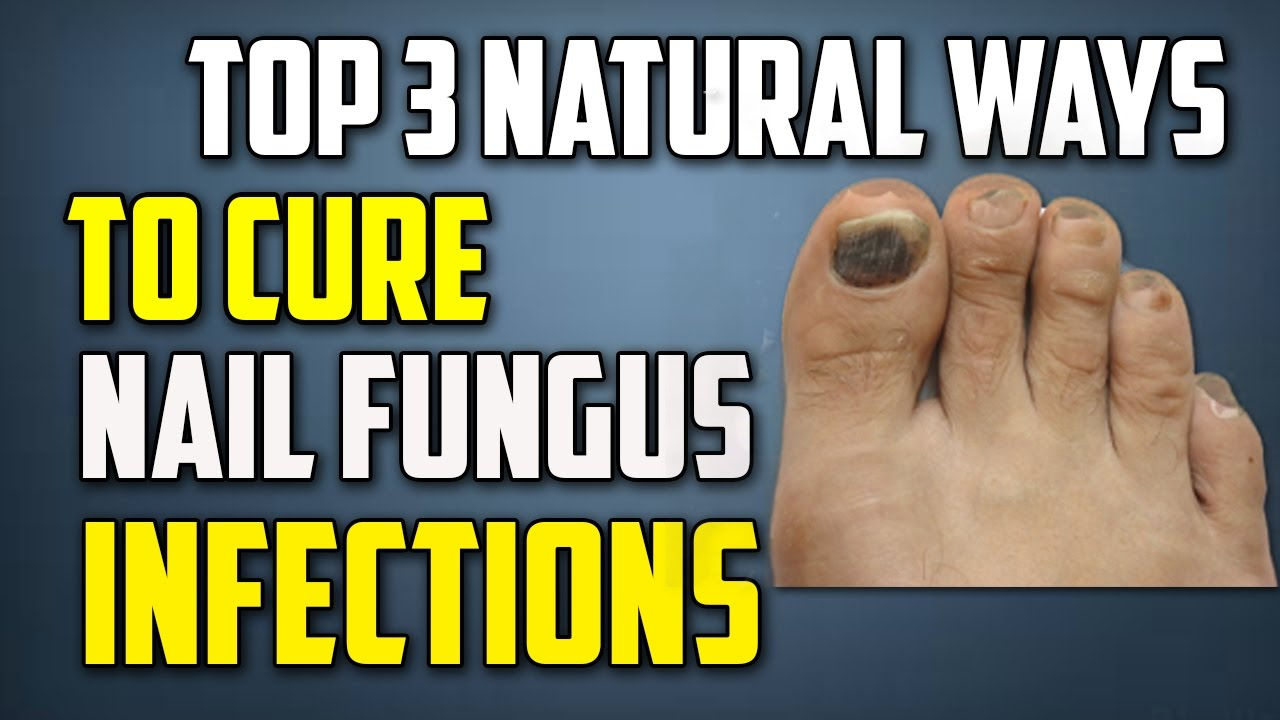 Top 3 natural ways to cure nail fungus infections | Natural ...