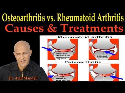 Osteoarthritis vs. Rheumatoid Arthritis (Causes & Remedies) - Dr. Alan Mandell D.C.
