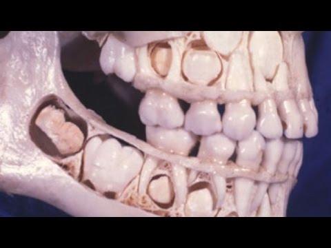 閲覧注意】衝撃!乳歯が永久歯に...