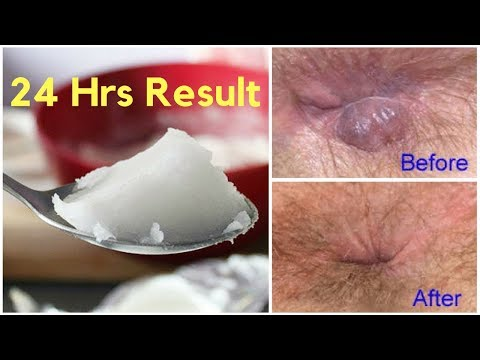 top-5-home-remedies-to-cure-hemorrhoid-naturally-and-permanently