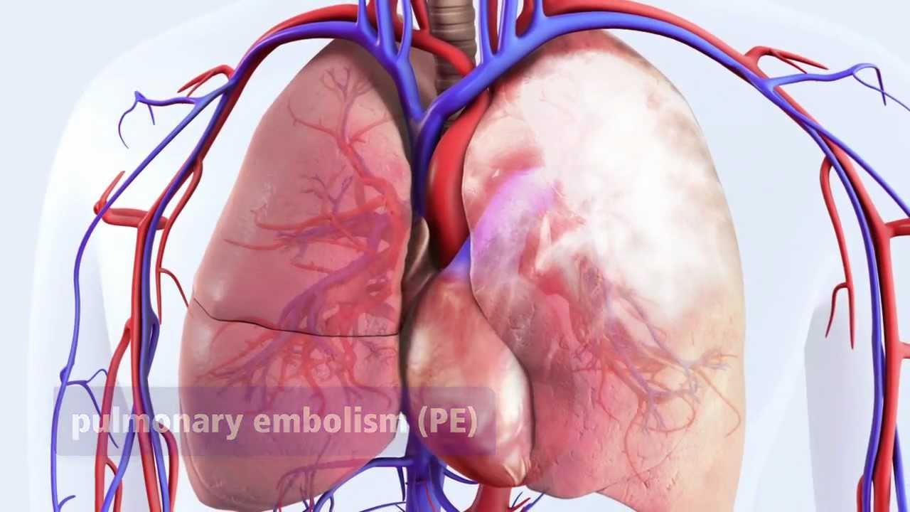 DVT Can Lead To Pulmonary Embolism PE