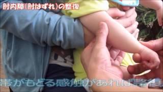 脱臼 赤ちゃん 肩 肩の脱臼の痛みが続く期間はいつまでか